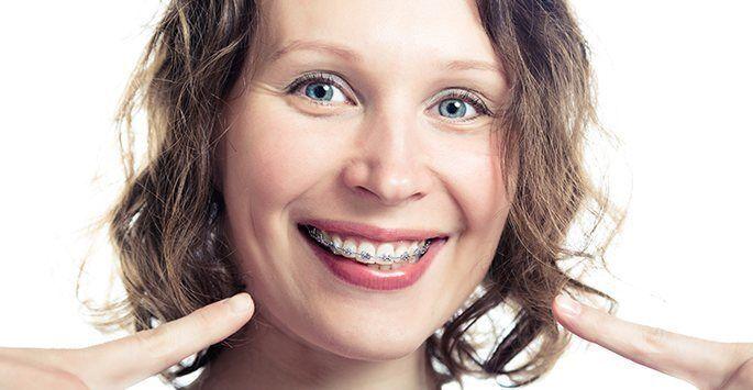 Braces For Adults,  Adult Orthodontics, Invisalign